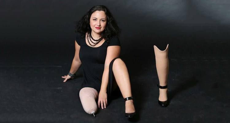 Ira Benimovich beside her prosthetic leg.